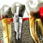 Зубная имплантация: мифы и страшилки