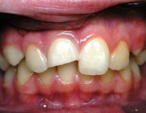 Травма зуба и лечение