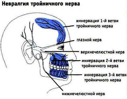 Воспаление тройничного нерва к стоматологу или неврологу 2