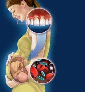 Беременность и здоровье зубов