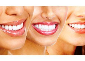 Красивая улыбка с продукцией Swiss smile