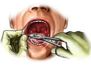Удаление зубов – все «за» и «против»