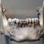 Брекет-системы – панацея для красивой улыбки