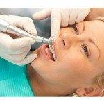 Опасность зубного камня и налет на зубах