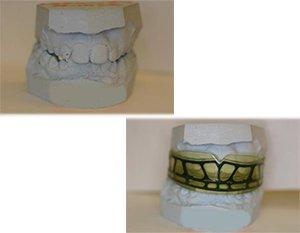 Правильный прикус и ровные зубы с ортодонтическими трейнерами