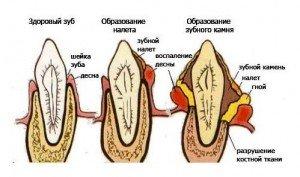 Зубной камень: удаление и причины возникновения