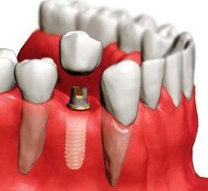 Коронки, как эффективный стоматологический ход