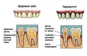 Решаем проблемы с зубами и деснами