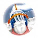 Электрическая зубная щетка для вас, ориентируемся на отзывы