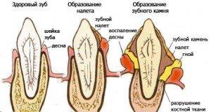 Зубной камень, как предпосылка образования кариеса