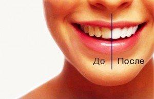 Лазерное отбеливание зубной эмали