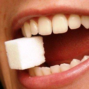 Налет на зубах или сладкий враг ротовой полости