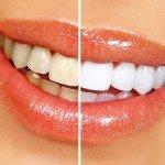 Профессиональное отбеливание зубов дома
