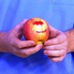 Кровоточивость десен: причины, способы лечения, профилактика