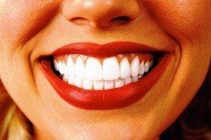 Отбеливание зубов. Какой он, путь к совершенству?