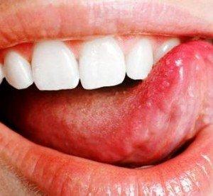 Средства для очистки языка