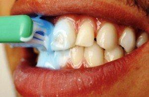 Зубной налет в ротовой полости: норма или отклонение?