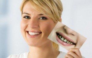 Керамическая коронка – первый помощник в реставрации зубного ряда