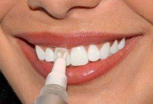 Отбеливающие пасты придадут зубам белоснежное сияние