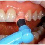 Современная стоматология рекомендует гигиеническую чистку зубов