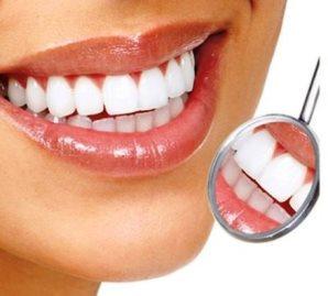 Диагноз по улыбке, система домашнего отбеливания