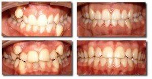 Искривление зубов? Стоматологическая клиника поможет