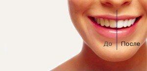 Лазерное отбеливание зубов и у вас белоснежная улыбка