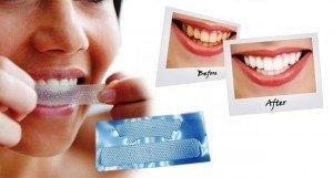 Отбеливание зубов: отбеливающие полоски, пасты