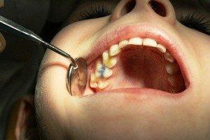 Профилактика и лечение пульпита – проблема с зубами