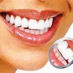 Система домашнего отбеливания зубов