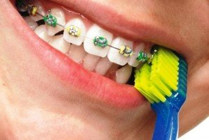 Зубные щетки и их особенности