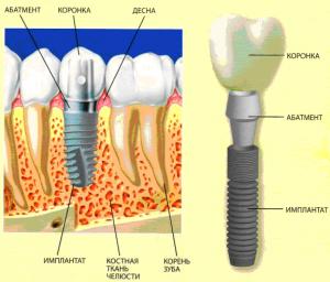 Имплантация зубов – решение многих проблем