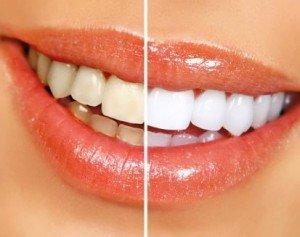 Отбеливание зубов – сделай свою улыбку ярче!
