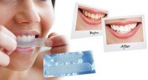 Домашнее отбеливание зубов при помощи полосок Dr. White