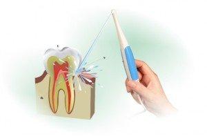 Ирригатор полости рта: все тонкости ухода за прибором