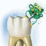 Кариес с точки зрения патологии полости рта