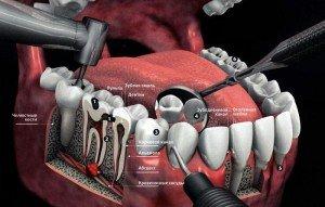Нерв зуба: особенности удаления