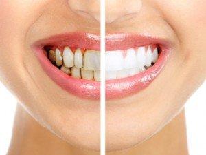 Вред сладостей и налет на зубах