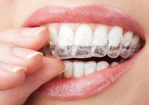 Домашнее отбеливание зубов: насколько это эффективно