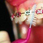 Зубные ершики – надежная страховка от стоматологических недугов