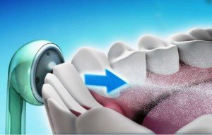 Ирригатор – основа ухода за полостью рта с ортодонтическими конструкциями