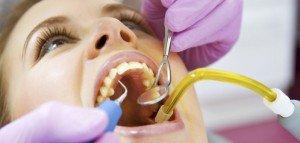 Налет на зубах гораздо опаснее, чем вы думаете