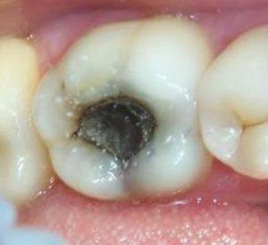 Проблемы с зубами при пульпите: методы лечения