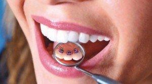 Брекеты — самое эффективное средство коррекции зубов